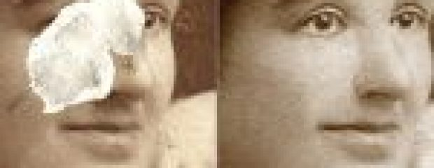 Restoring a face with pieces missing