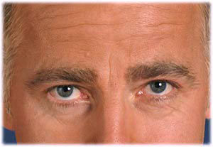 Removing wrinkles before retouching